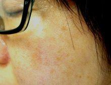 黃褐斑 Melasma