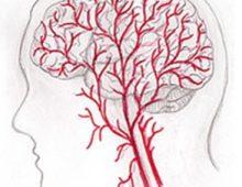 認知障礙症 Dementia
